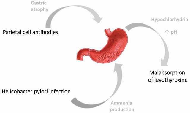Effect of gastrointestinal disorders in autoimmune thyroid diseases